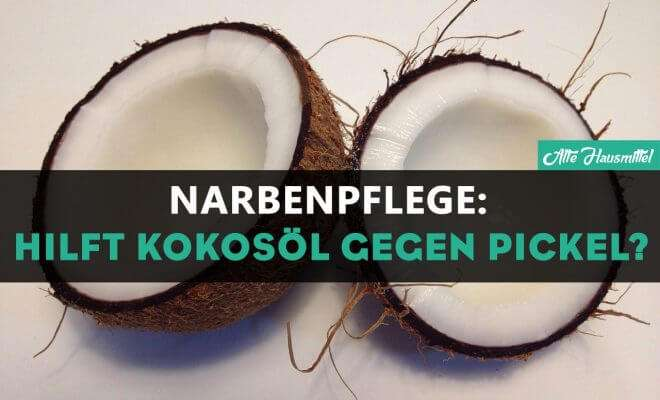 Hilft Kokosöl gegen Pickel?